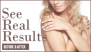 results_breast_augmentation_seattle