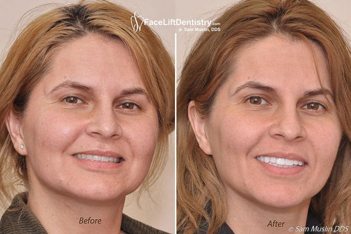 anti-aging-facial-overbite-correction