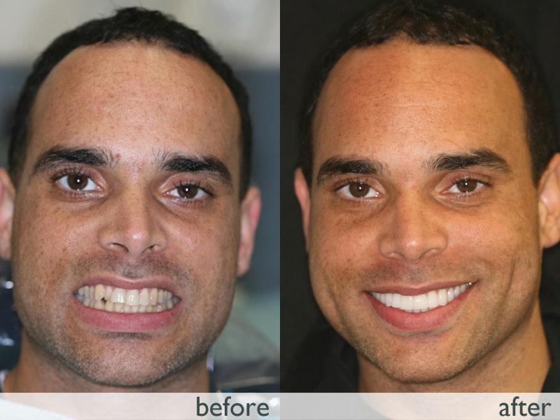 michael-crowded-teeth-head